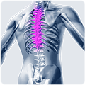 Posture correction of the thoracic spine